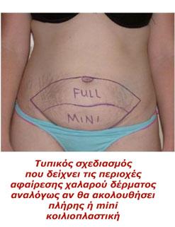 Πλήρης ή Μίνι Κοιλιοπλαστική